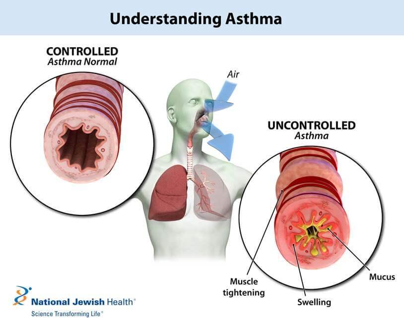 Pediatric Asthma | Childhood Asthma | Asthma in Children