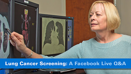 Free Lung Cancer Screening – Do You Need One?
