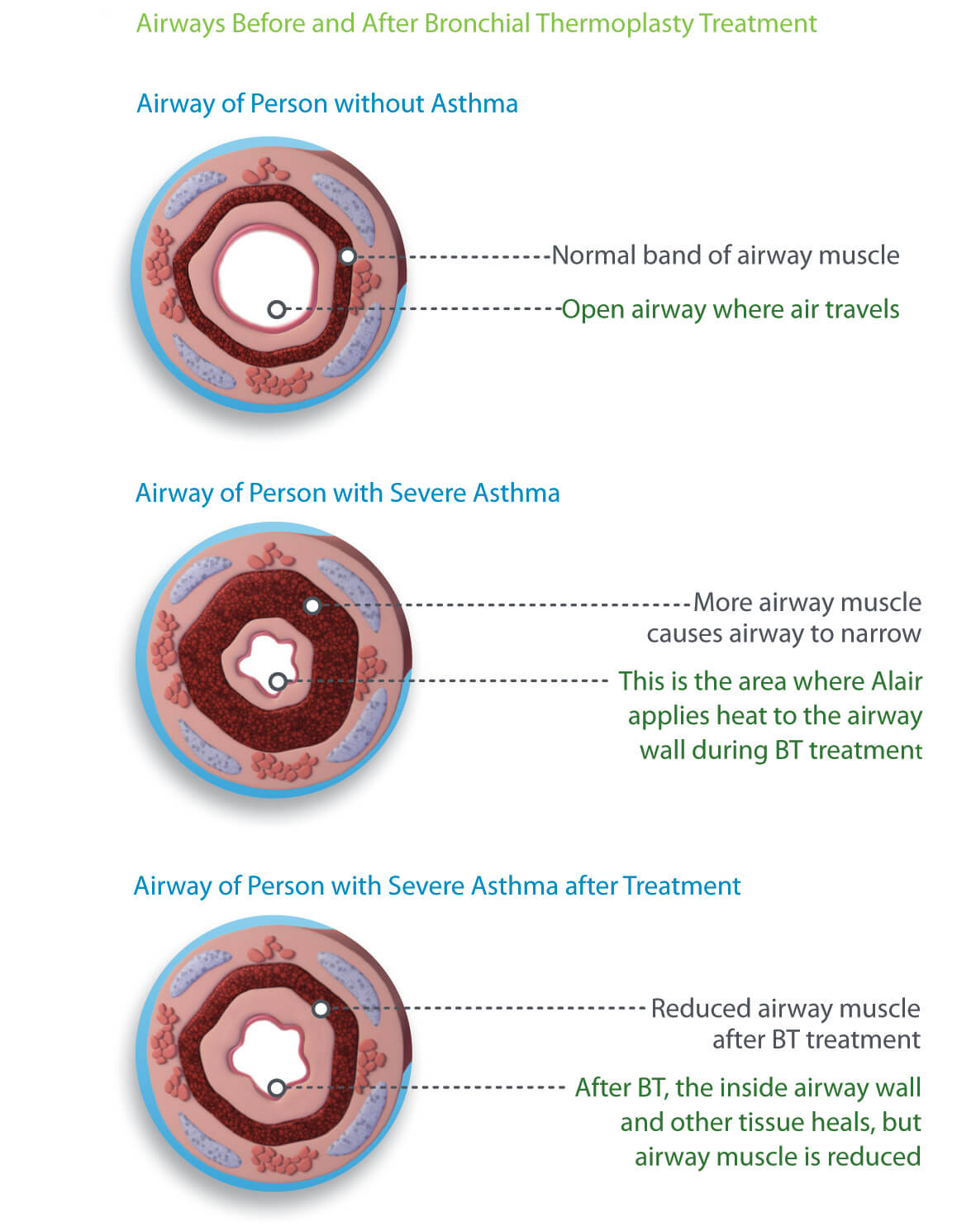 airway diagram