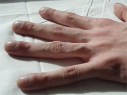 """Clubbing"" of the fingers is a classic features of Cystic Fibrosis, although not present in many patients."