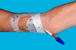 A peripherally inserted central catheter, or PICC line