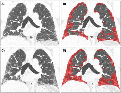 Sequential quantitative CT measurement of fibrosis in a patient with idiopathic pulmonary fibrosis at baseline and at 14 months, using Data-Driven Texture Analysis. The extent of fibrosis, shown in red, increased from 39%25 to 52%25, and the patient deteriorated physiologically, with decrease in Forced Vital Capacity from 66%25 predicted to 45%25.