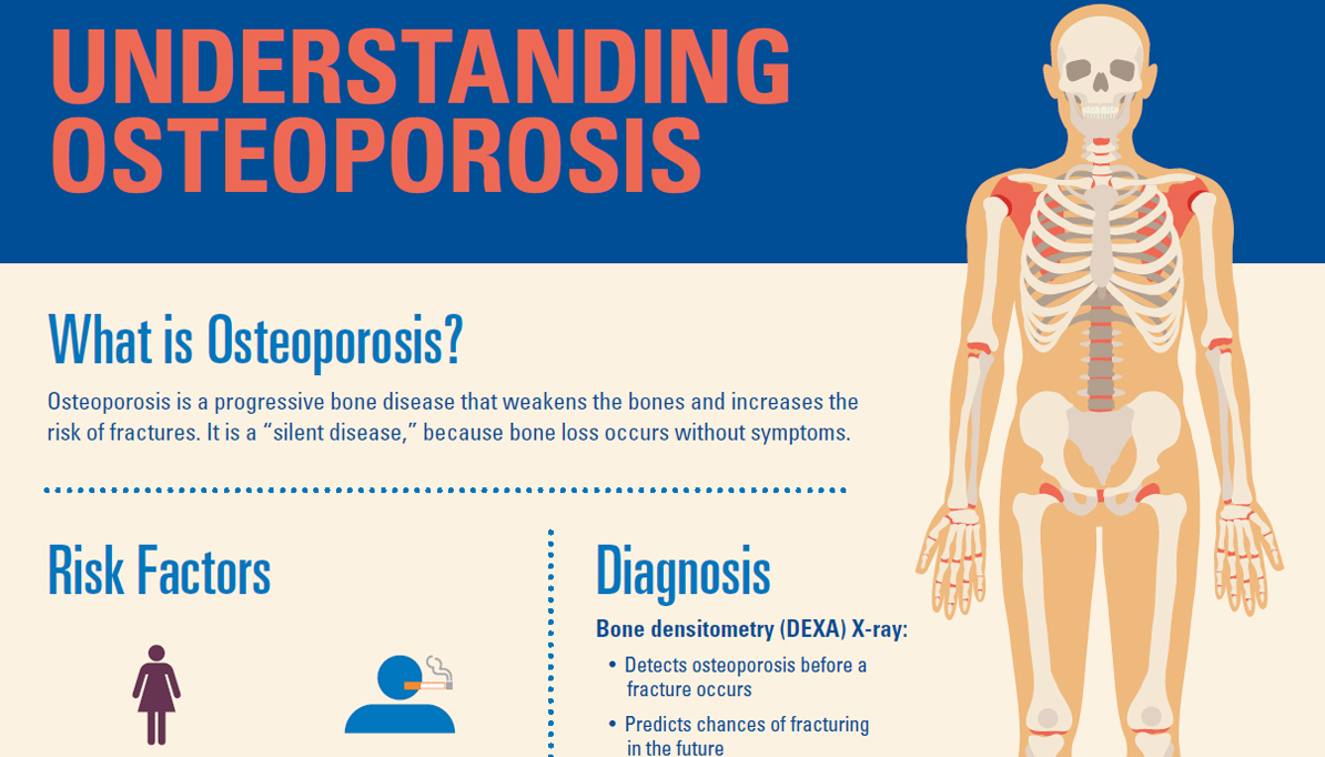 34+ How does osteoporosis affect the probability of having broken bones ideas