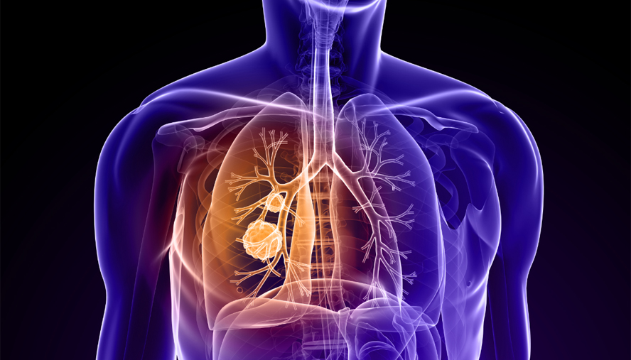 What does pneumonia do to the lungs?