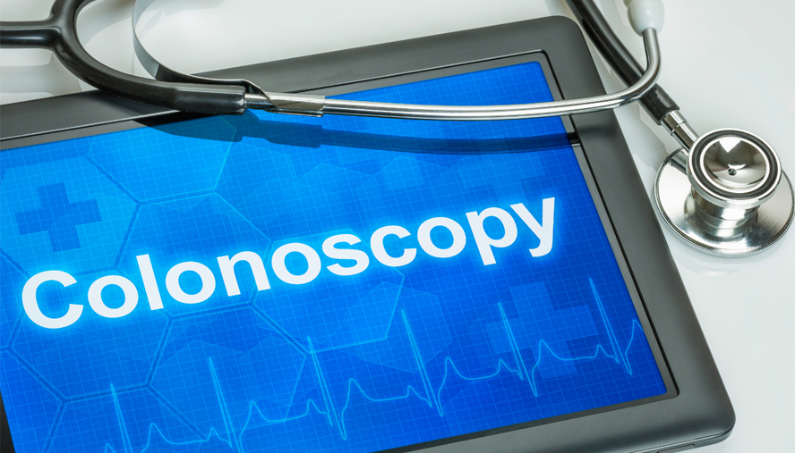 Myth 1: If you don't have any symptoms, you don't need a colonoscopy.