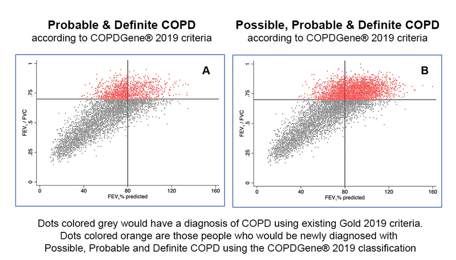 New Diagnostic Criteria Proposed  For Chronic Obstructive Pulmonary Disease (COPD)