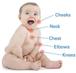Eczema Symptoms Symptoms Of Eczema Atopic Dermatitis