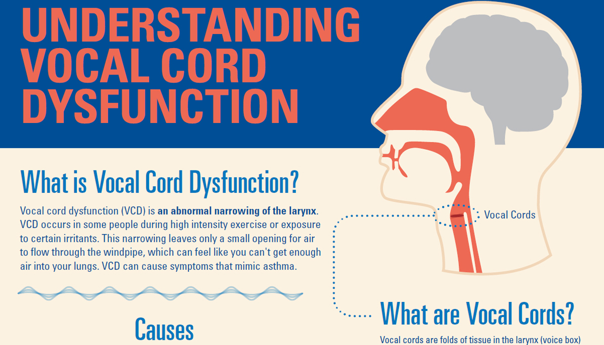 Understanding Vocal Cord Dysfunction