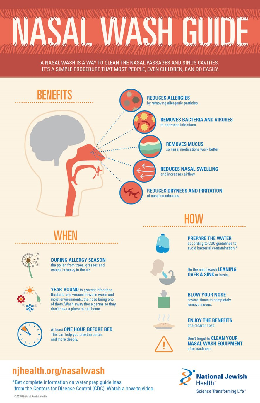 Nasal Wash Guide Infographic