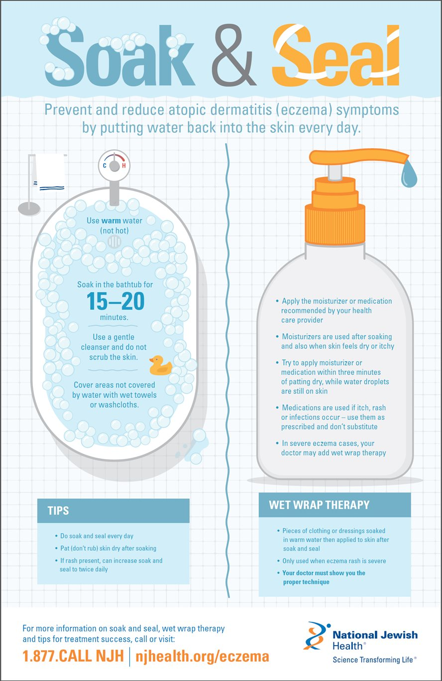 Soak and Seal Eczema Treatment Infographic
