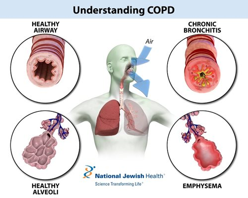 chronic obstructive pulmonary disease copd management Chronic obstructive pulmonary disease (copd) is a lung disease that includes chronic bronchitis and emphysemain 80-90% of cases, it is caused by smoking other causes of copd can include.